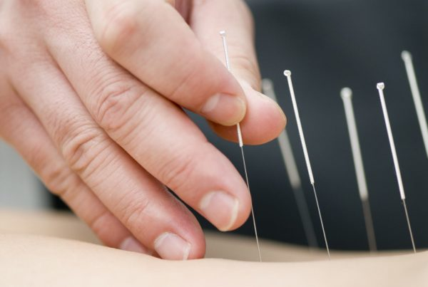Fertility Acupuncture applications by Robina 7 Day Doctors