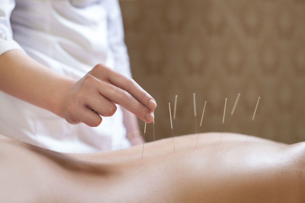 ACUPUNCTURE TREATMENT - Robina 7 Day Doctors and ...