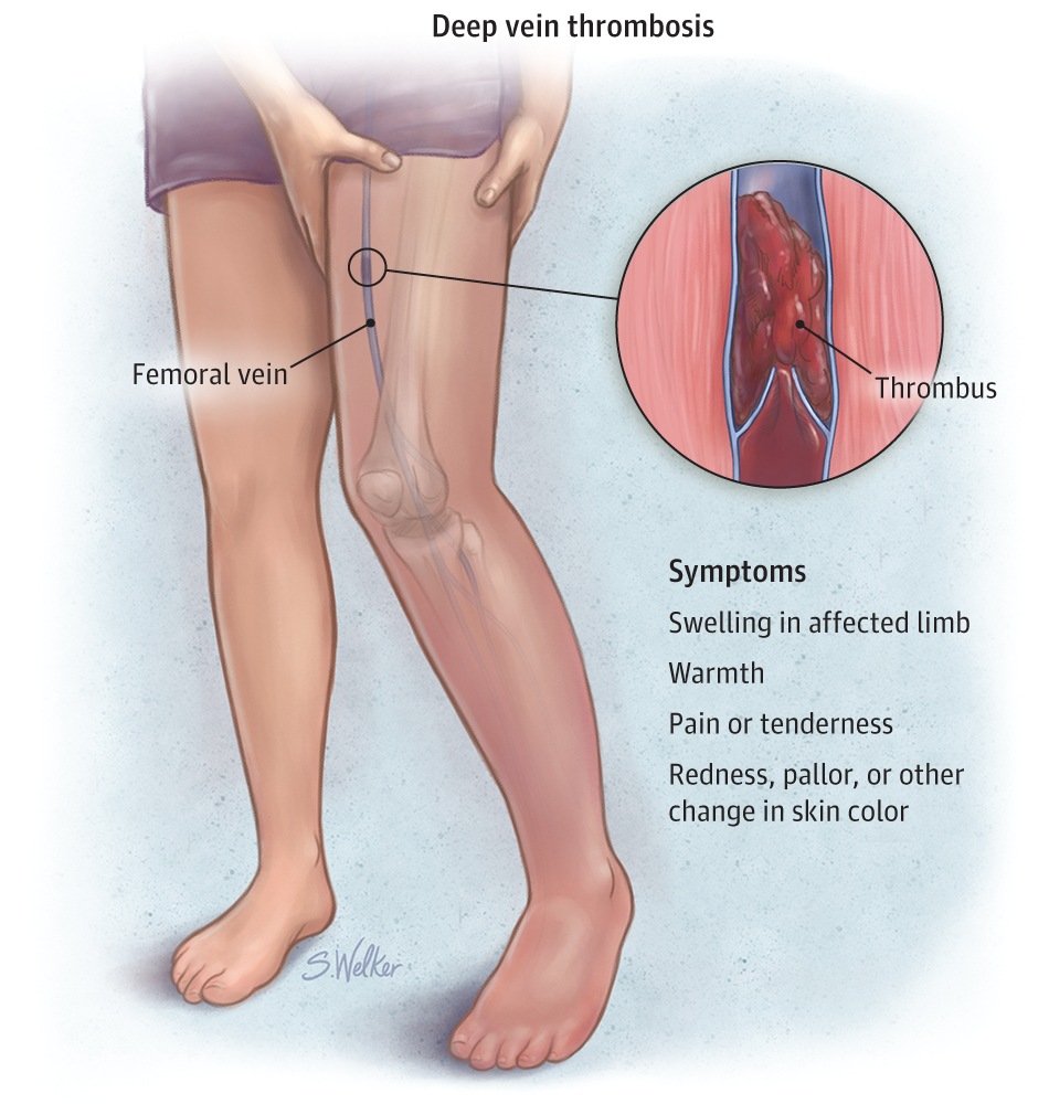 Deep Vein Thrombosis ( DVT )
