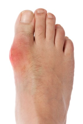 Gout – Diagnosis and Treatment