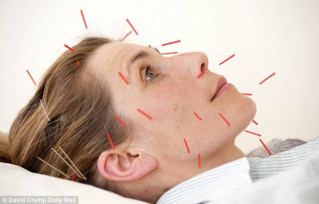 Acupuncture for Sinusitis