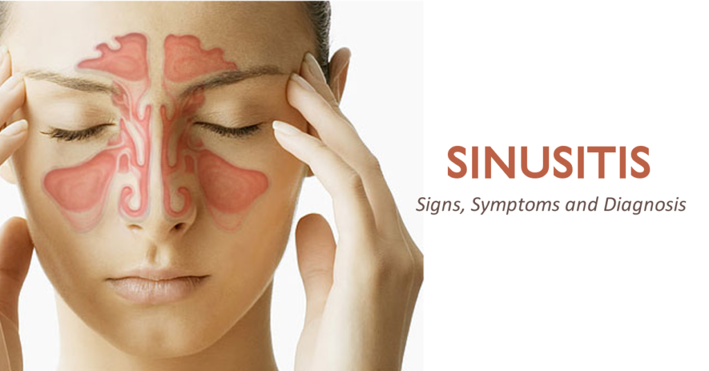 Sinusitis Symptoms - Robina 7 Day Doctors and Acupuncture