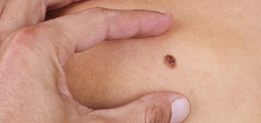 Skin Cancer – Detect and Prevent