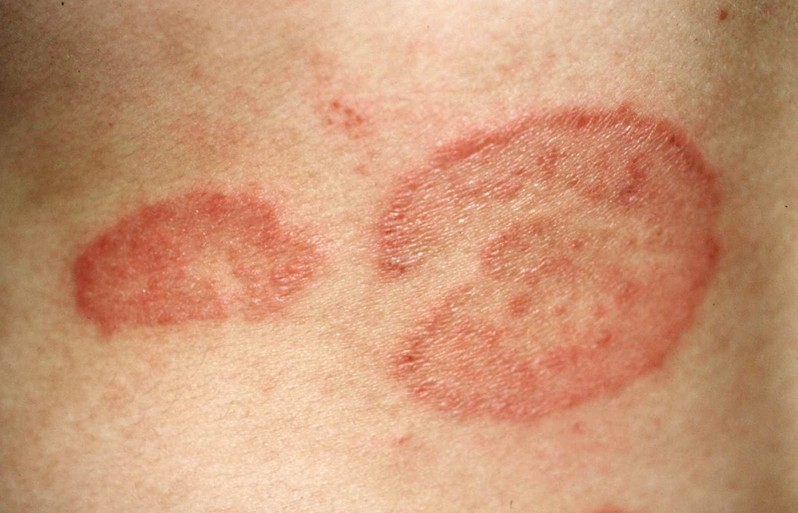 Tinea / Ringworm – Signs and Symptoms