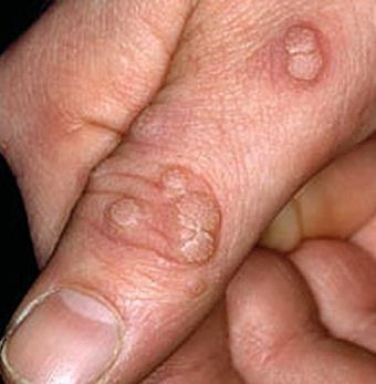Warts – How to Treat