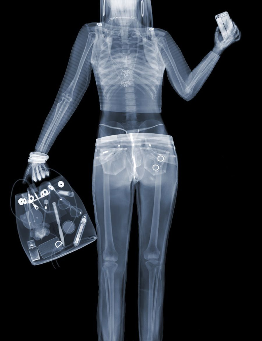 Should you worry about getting an X-ray?